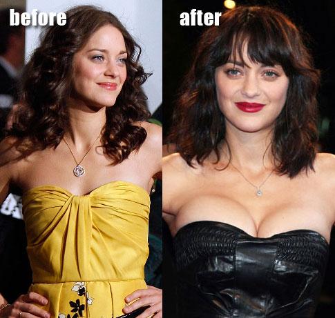 augmenter les seins