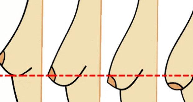 Vieillissement de la peau AND Ptose mammaire