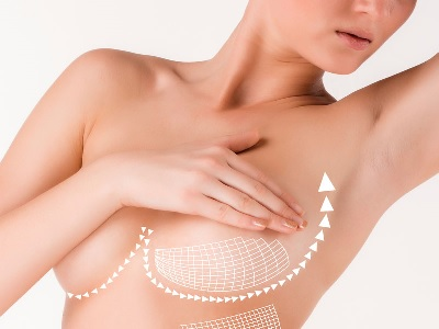 lifting mammaire rajeunir les seins affaissés