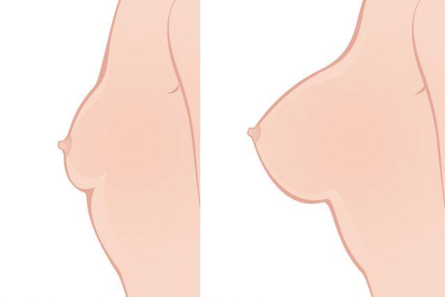 hypotrophie mammaire implants mammaires Tunisie