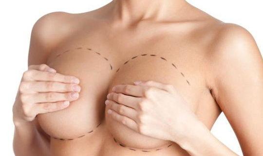 Implants anatomiques augmentation mammaire Tunisie