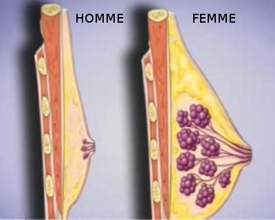 poitrine masculine chirurgie seins